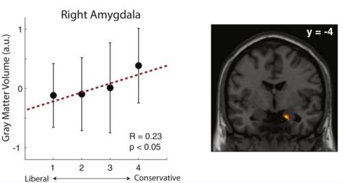 Right Amygdala.png